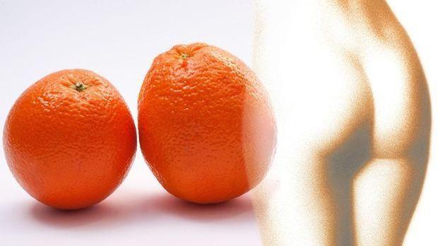 S1 Gold_XL-Artikel_Cellulite_Das hilft gegen Orangenhaut_Bild 1_Pixabay